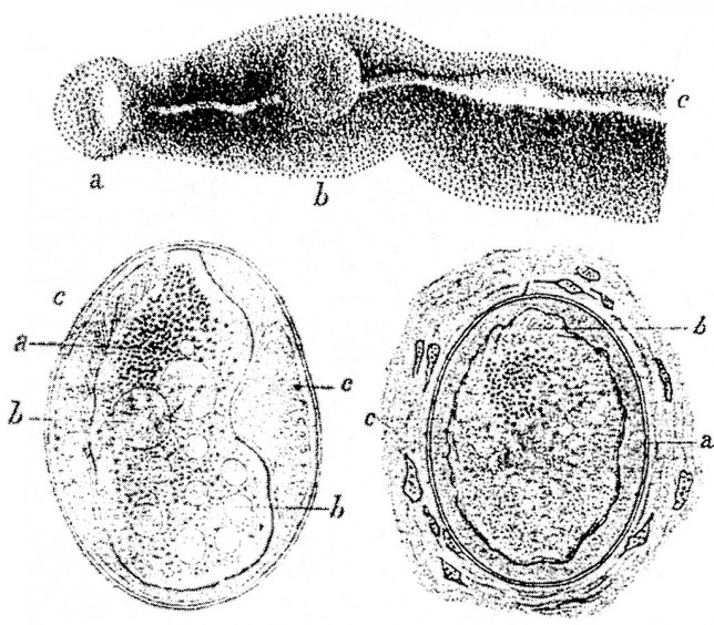 Schistosoma_japonicum_parasites_and_eggs_sketches_by_Katsurada_Dr._1904